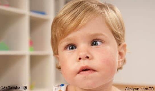 Çocuklarda Göz Tembelliği Nedir?